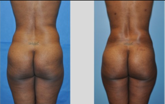 Buttock Augmentation before 271483