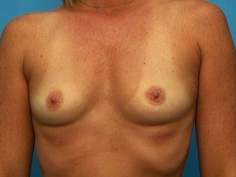 Breast Augmentation before 133690