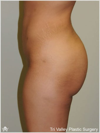 Brazilian Buttock Lift after 420876