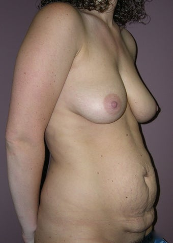 Abdominoplasty and breast implants