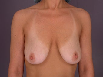 Breast Lift / Breast Augmentation   before 291182