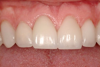 Cosmetic Dentistry after 209393