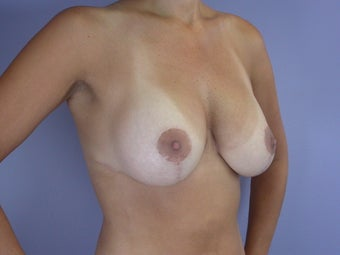 Breast Lift / Breast Augmentation after 291177