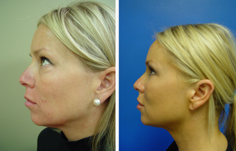 36 year old female who underwent liposuction of face before 625475