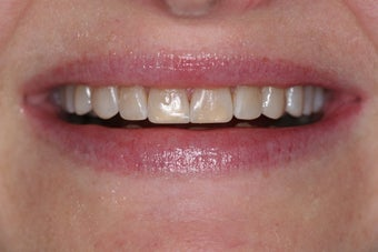 Composite veneers along with whitening after 45950