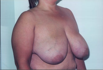 Breast Reduction before 218957