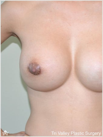 Breast Augmentation after 420885
