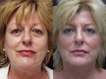 Non-surgical face lift before 591359