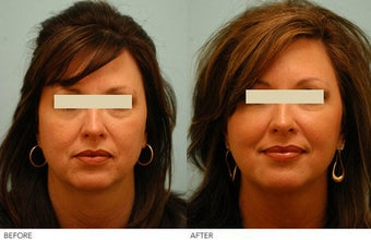 Injectable Fillers (Restylane/Perlane) before 136781