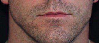 Male lip augmentation before 393232