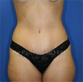 Tummy tuck after 199311