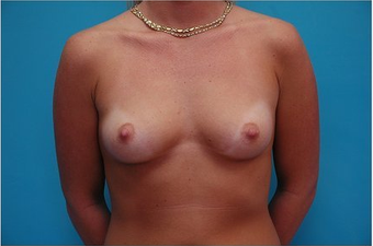 Breast Augmentation Silicone hi profile 375cc before 64686