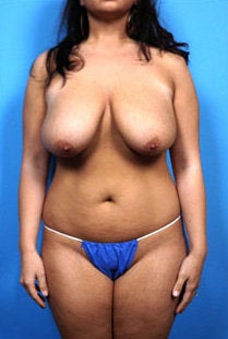 breast reduction and liposuction to abdomen and love handles before 445405