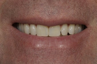 Closing a space between the front teeth with dental bonding 324982