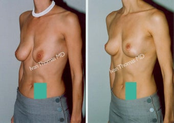 Mastopexy-Breast Lift before 243703