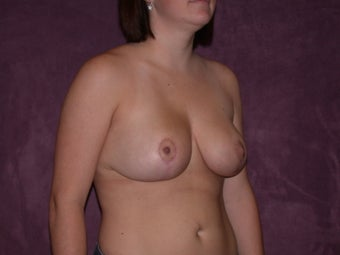 Breast Reduction 321372