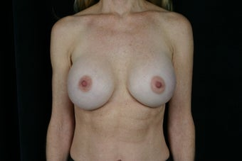 Breast Revision after 307211