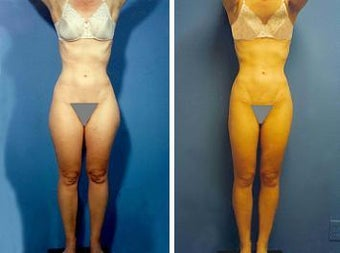 Liposuction before 636233