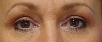 Upper Blepharoplasty after 251707