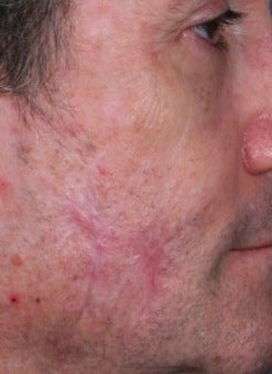 PDL scar treatment after 374580