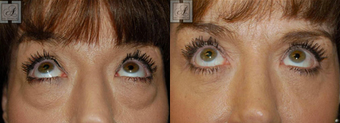 Blepharoplasty after 314257