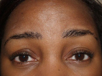 Eyebrow Transplantation after 335791