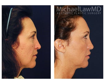 Cheek Augmentation 415257