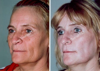 Non-Surgical Face Lift- Exoderm  before 242981