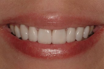 Porcelain Veneers after 205474