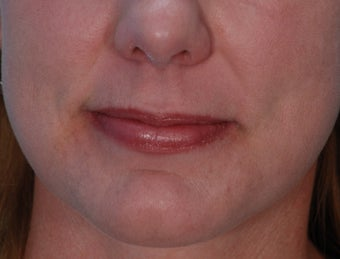 Lip Augmentation with Juvederm before 220082
