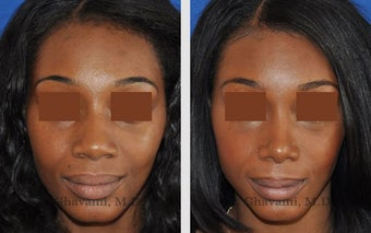 African American Rhinoplasty after 495714