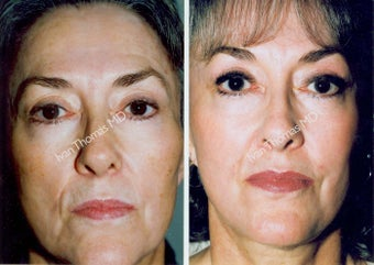 Non-Surgical Face Lift- Exoderm  before 242994