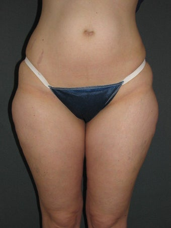 Smart Lipo of Hips, Saddle Bags, and Inner Thighs before 325110