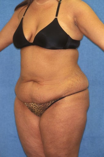 Tummy Tuck with Liposuction 411595