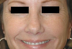 Botox for Crows Feet  before 93348