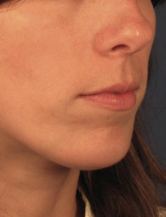 Chin Implant after 414148