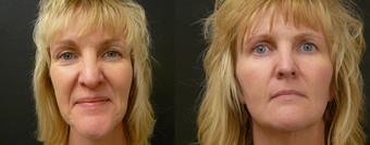 Liquid Facelift - no surgery enhancement using fillers before 603993