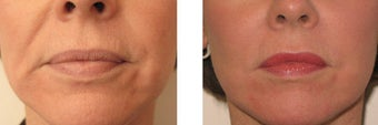 Juvederm and Botox around mouth before 69356