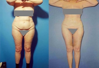 Liposuction before 636176