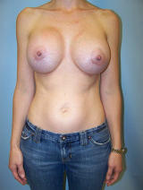 Revisionary Breast Surgery with Silicone-Gel Implants after 120834