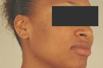 Laser Acne Scar Removal after 82947