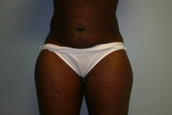 Abdominoplasty before 319557