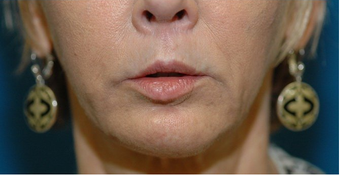 Lip lift + Chin implant + ArteFill
