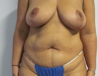 Mommy Makeover: Abdominoplasty/ Liposuction/ Mastopexy/ Beltectomy  before 562482