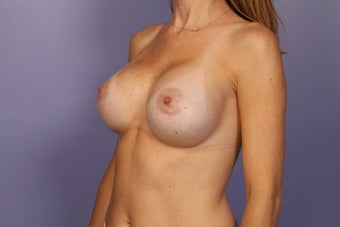Breast Implant Revision after 622833