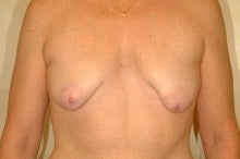 Full Mastopexy Augment to Correct Breast Asymmetry before 177525