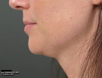 Ulthera Laser Skin Tightening after 346277