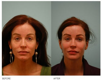 Fat Transfer/Fat Grafting/Facial Rejuvenation before 136381