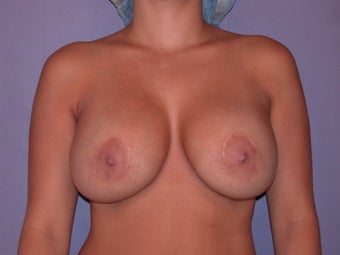 Breast Implant Revision before 311095