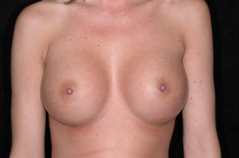 Breast Augmentation after 336398